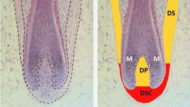A New Approach to Treating Hair Loss | Technology Networks