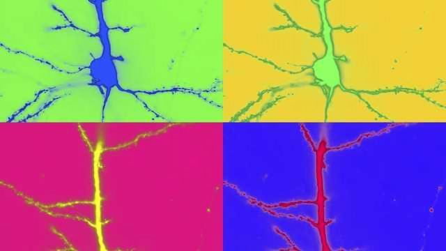 Confocal Micrograph of Layer 2/3 Pyramidal Neuron