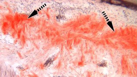 Technique Enables Faster Diagnosis of Inherited Nerve Disease