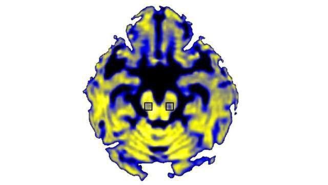 Waterlogged Brain Region Helps Scientists Gauge Damage Caused by Parkinson's Disease