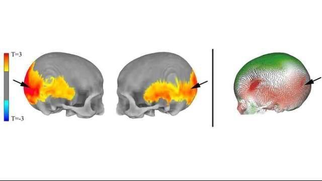 Brain Regions Implicated in Mental Disorders Influenced by Neanderthal Genes