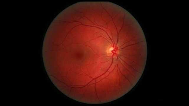 CRISPR Used to Prevent Development of Angiogenesis of the Retina