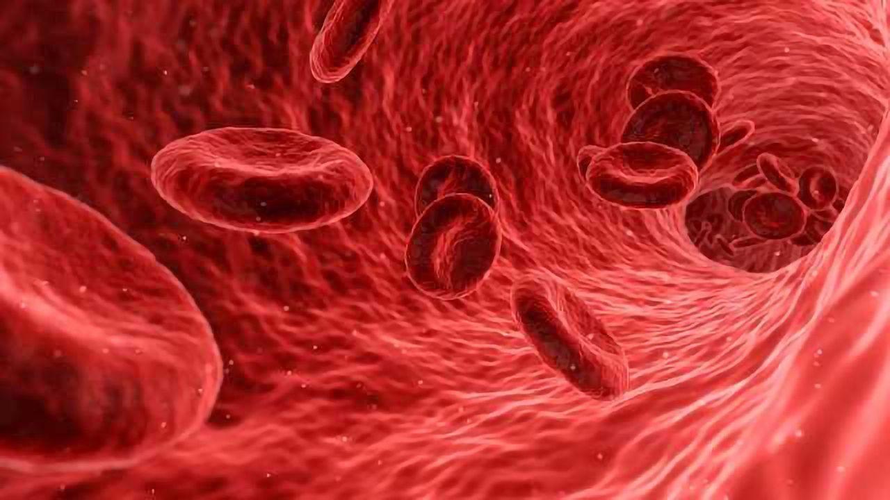 A Blood-based Screening Test for Alzheimer's