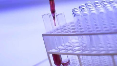 Key Challenges and Pain Points in the Global Laboratory Market
