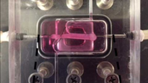 Artificial Blood Vessels Mimic Rare Accelerated Aging Disease