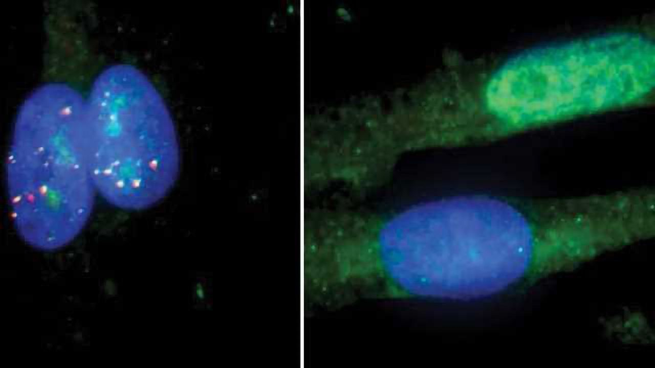 New Version of CRISPR Corrects RNA Defects Linked to Huntington's, ALS