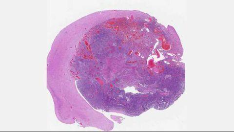Specific Gene Combinations Linked to Glioblastoma