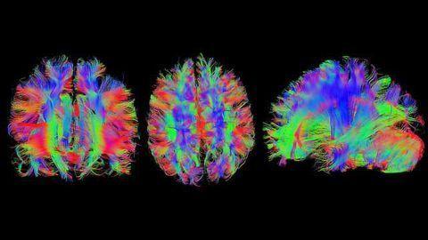 Beautiful Brain Images