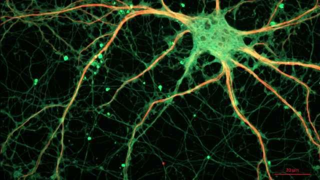 Researchers Make Surprising Discovery About How Neurons Talk to Each Other