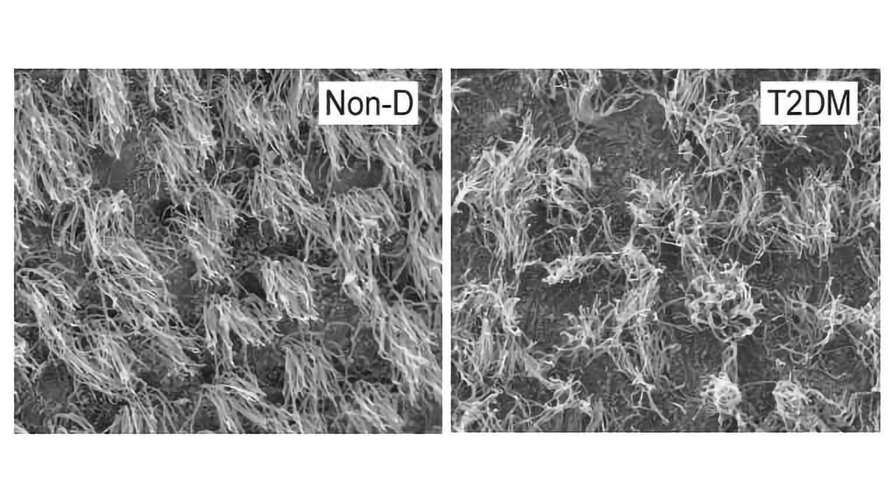 Diabetes Linked With Collapse of Brain Cilia and Impaired Neurogenesis