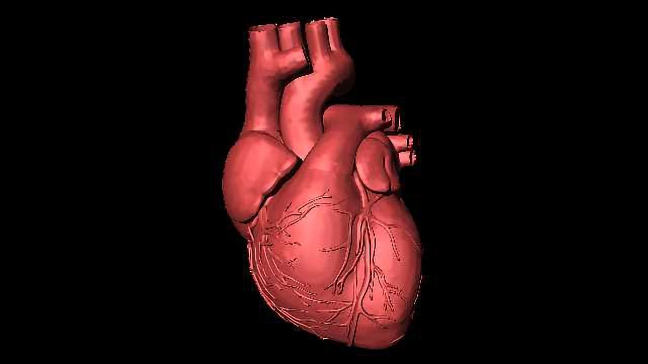 Lasers Used to Detect Risk of Heart Attack and Stroke