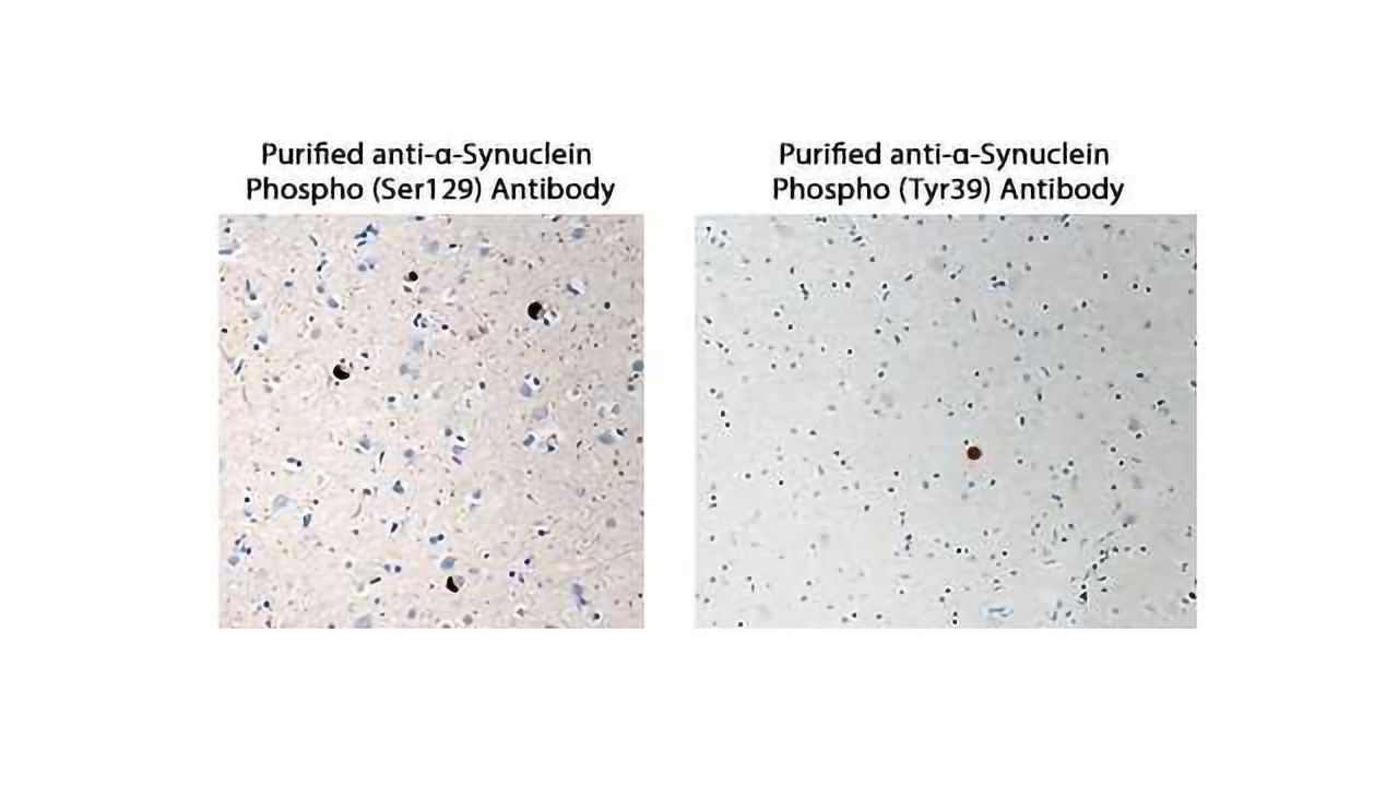 Image α-Synuclein Aggregration