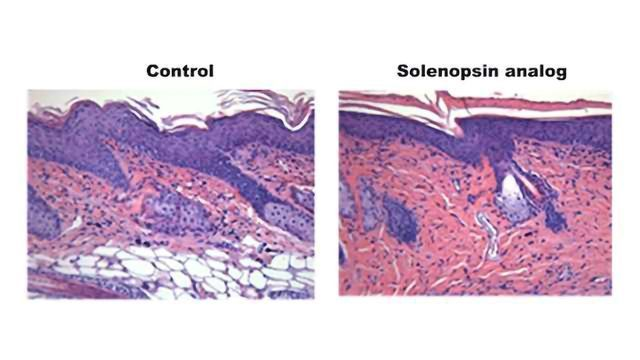 Could Venom Derived Compounds be Used to Treat Skin Inflammation?