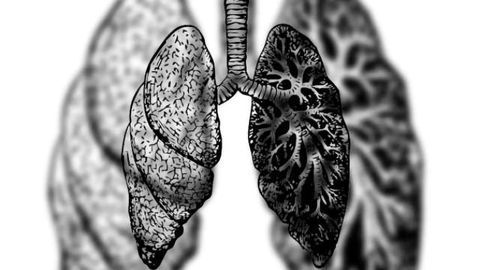 Antibody Treatment Effective in Treatment-Resistant COPD Patients