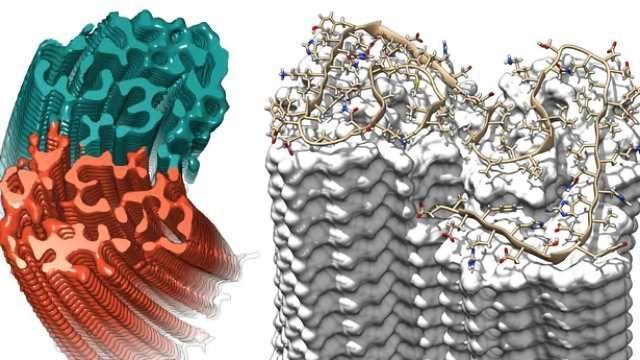 Sharpest Image of Alzheimer's Fibrils Shows Previously Unknown Details