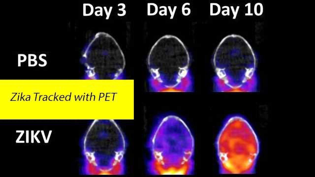 Positron Emission Tomography (PET) Study of Zika Brain Infection