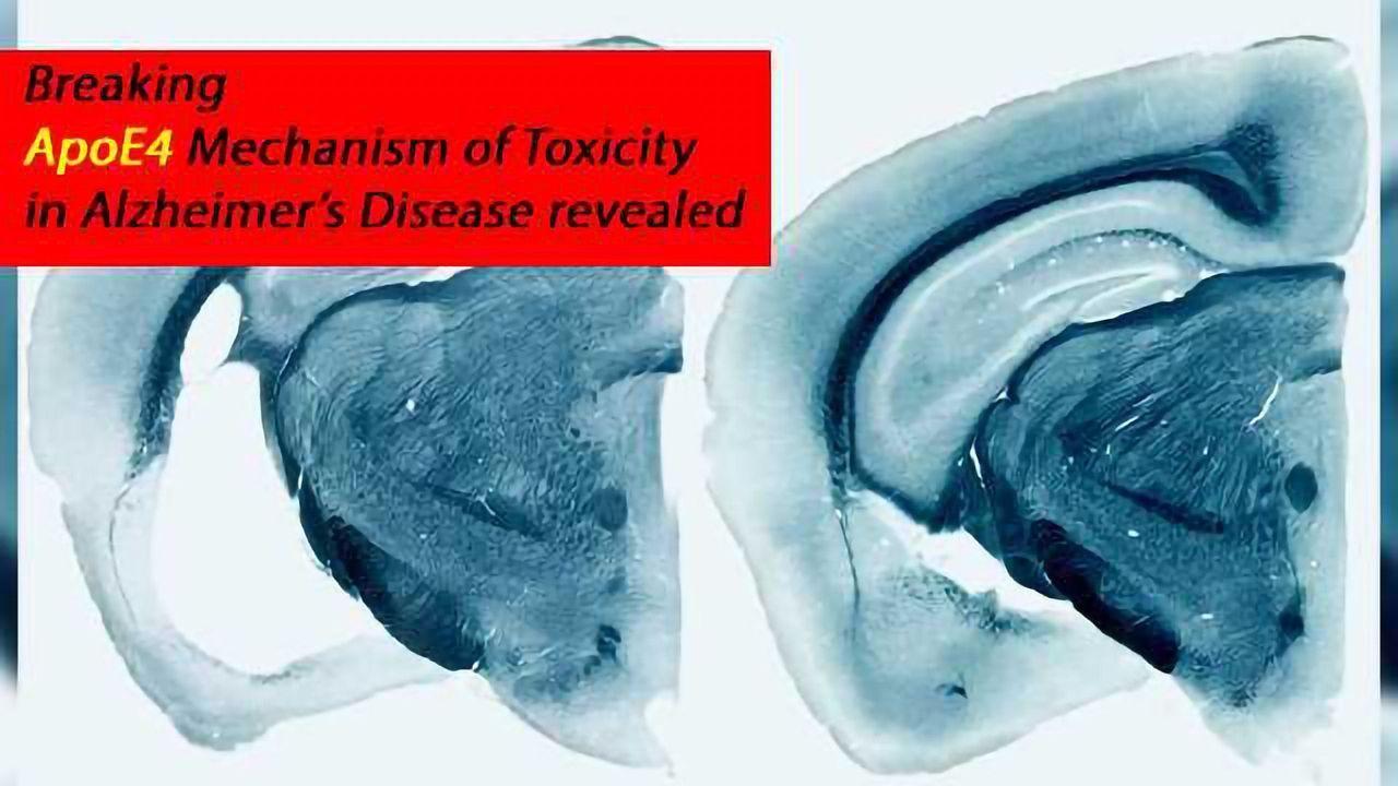 Mechanism of ApoE4 Gene Toxicity in Alzheimer's Disease Neurodegeneration Solved