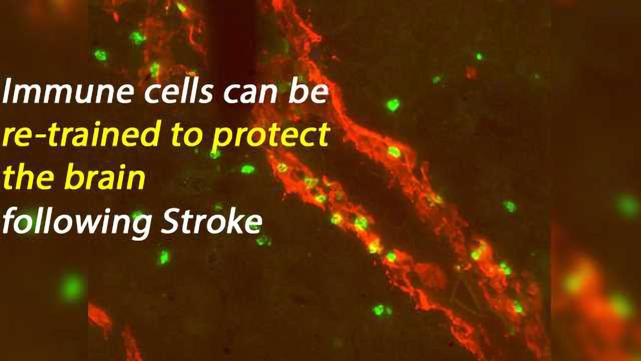 Immune System Plays a Critical Role in Microvascular Repair Following Stroke