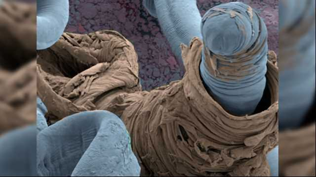 Students and Scientists Join Forces to Decode Parasitic Worm's Genome