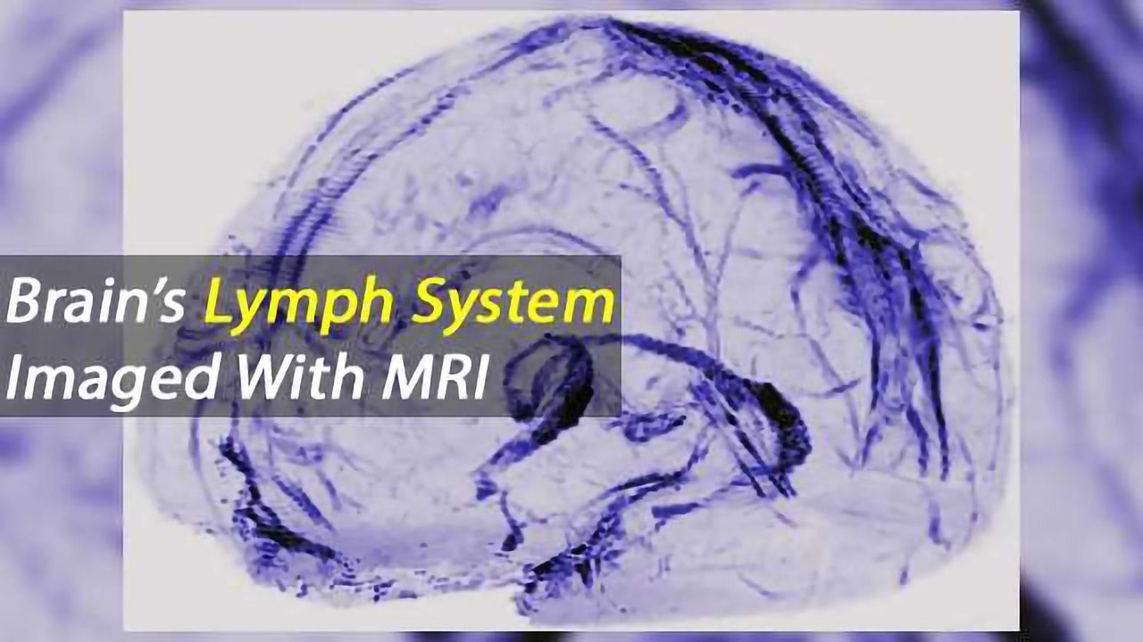The Brain's Meninges Harbour its Lymphatic System