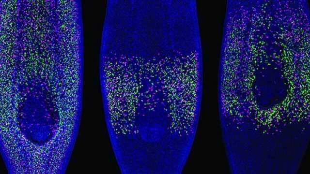 Worm Study Reveals Role of Stem Cells in Cancer