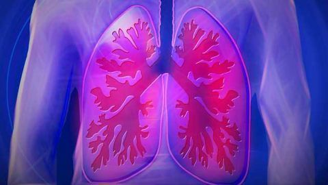 Stem Cells Could Offer Hope for Patients with Lung Damage