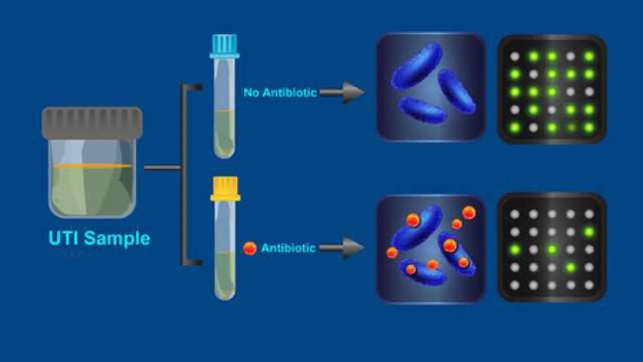 New Test Reveals Antibiotic-Resistant Bacteria in 30 Minutes