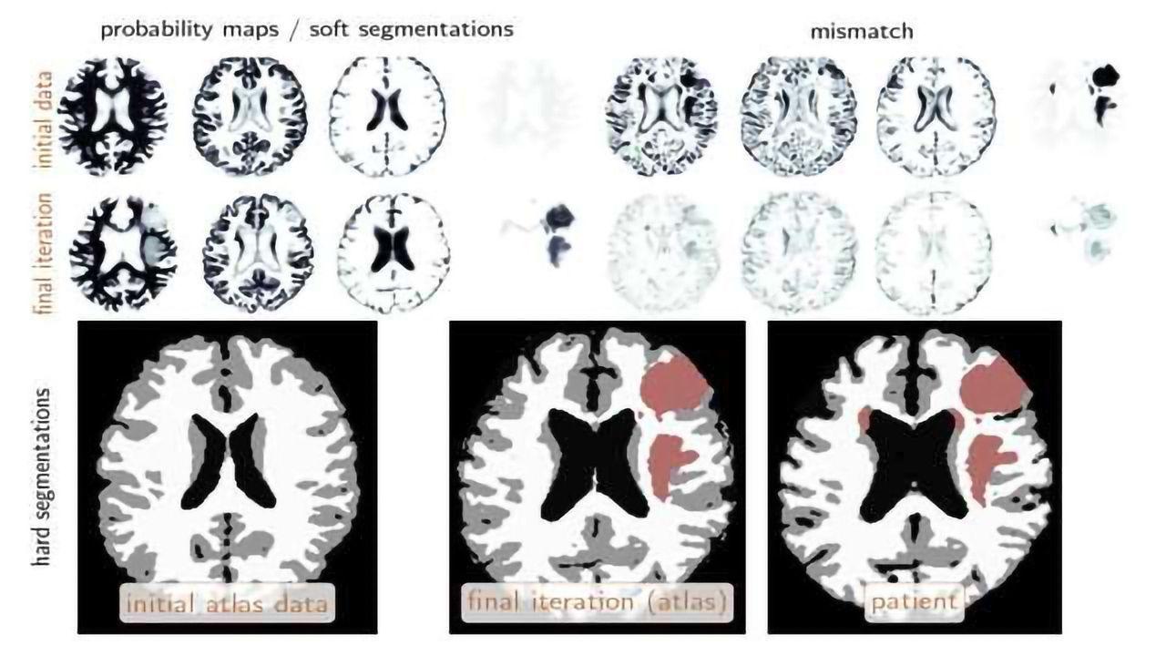 Ability to Identify Brain Tumors Using Machine Learning
