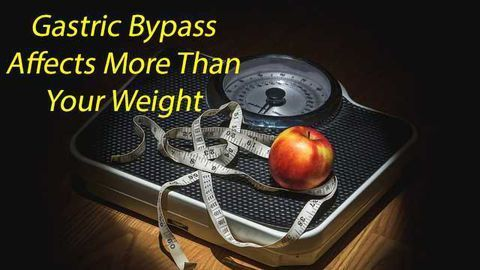 Advancing Technology Helps Understanding of Gastric Bypass Effectiveness
