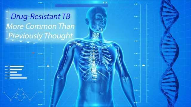 Next Gen Sequencing Test Enables Precise Identification of Drug-Resistant TB
