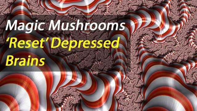 Psilocybin for Treatment-Resistant Depression