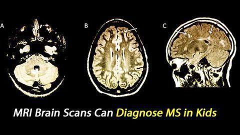 MRI Brain Scans Can Spot MS in Kids