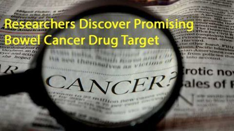 Researchers Discover a Promising Drug Target for Bowel Cancer