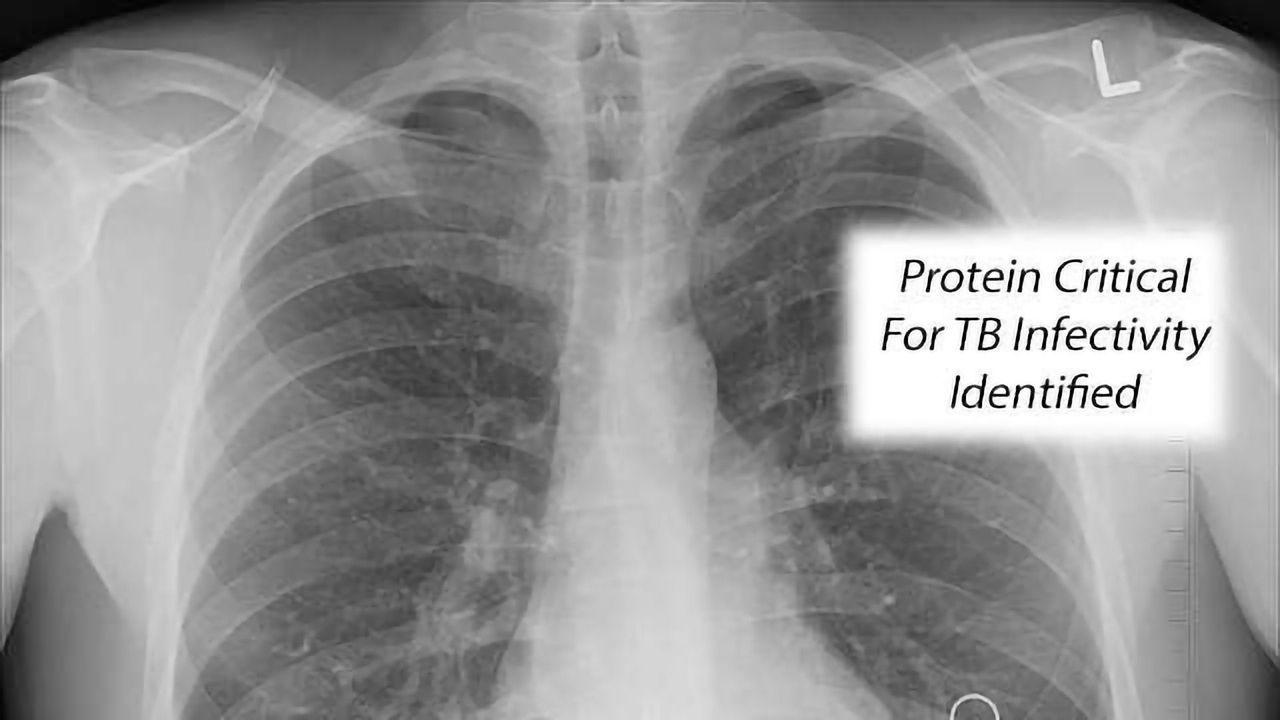 Step Toward Possible New Anti-TB Treatment Path