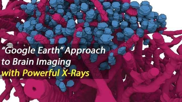Powerful X-rays Enable Mesoscale Brain Imaging