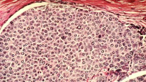 Researchers Advocate for Single-Cell Diagnostics for Breast Cancer