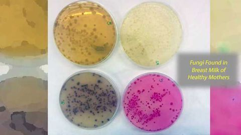 Detection of the Presence of Fungi in Human Breastmilk Samples from Healthy Mothers