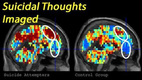 Suicidal Individuals Identified by their Brain Activity