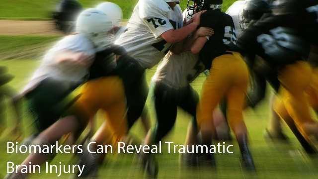 Biomarkers Can Reveal Tramautic Brain Injury