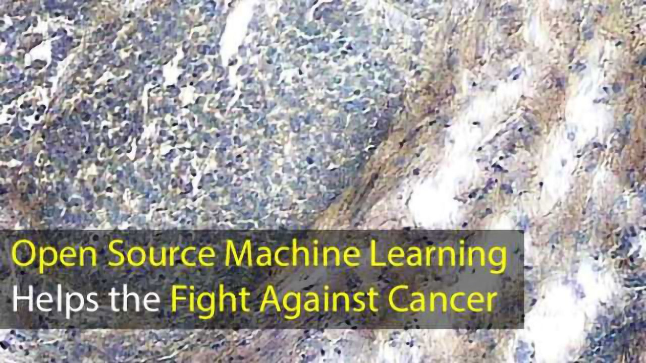 Open Source Machine Learning Helps the Fight Against Cancer
