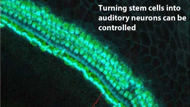 Inner Ear Stem Cells May Someday Restore Hearing
