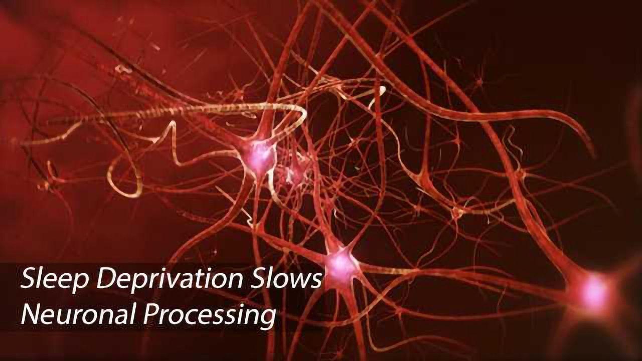 Sleep Deprivation Causes Neuronal Lapses That Precede Human Cognitive Lapses