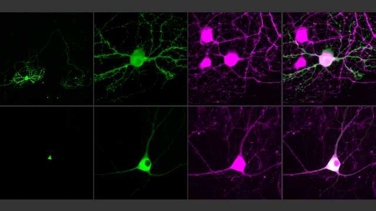 Next-generation Optogenetic Molecules Used to Control Single Neurons