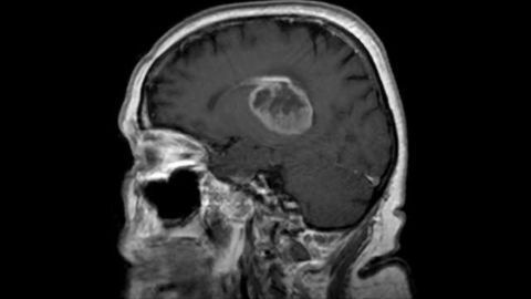 Attacking Telomeres Offers First Effective Glioblastoma Therapy