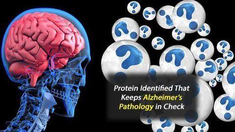 New Player in Alzheimer's Disease Pathogenesis Identified