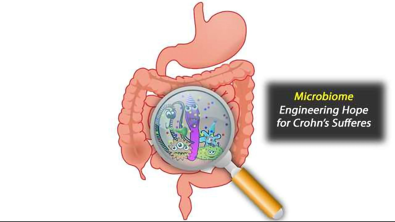 Engineering the Gut Microbiome with 'Good' Bacteria May Help Treat Crohn's Disease