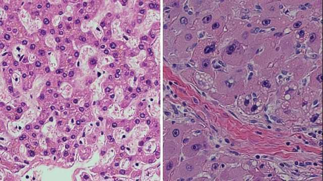 Novel Approach May Aid Rare Liver Cancer Patients
