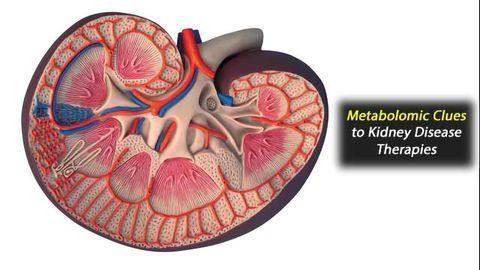Metabolites Altered in Chronic Kidney Disease