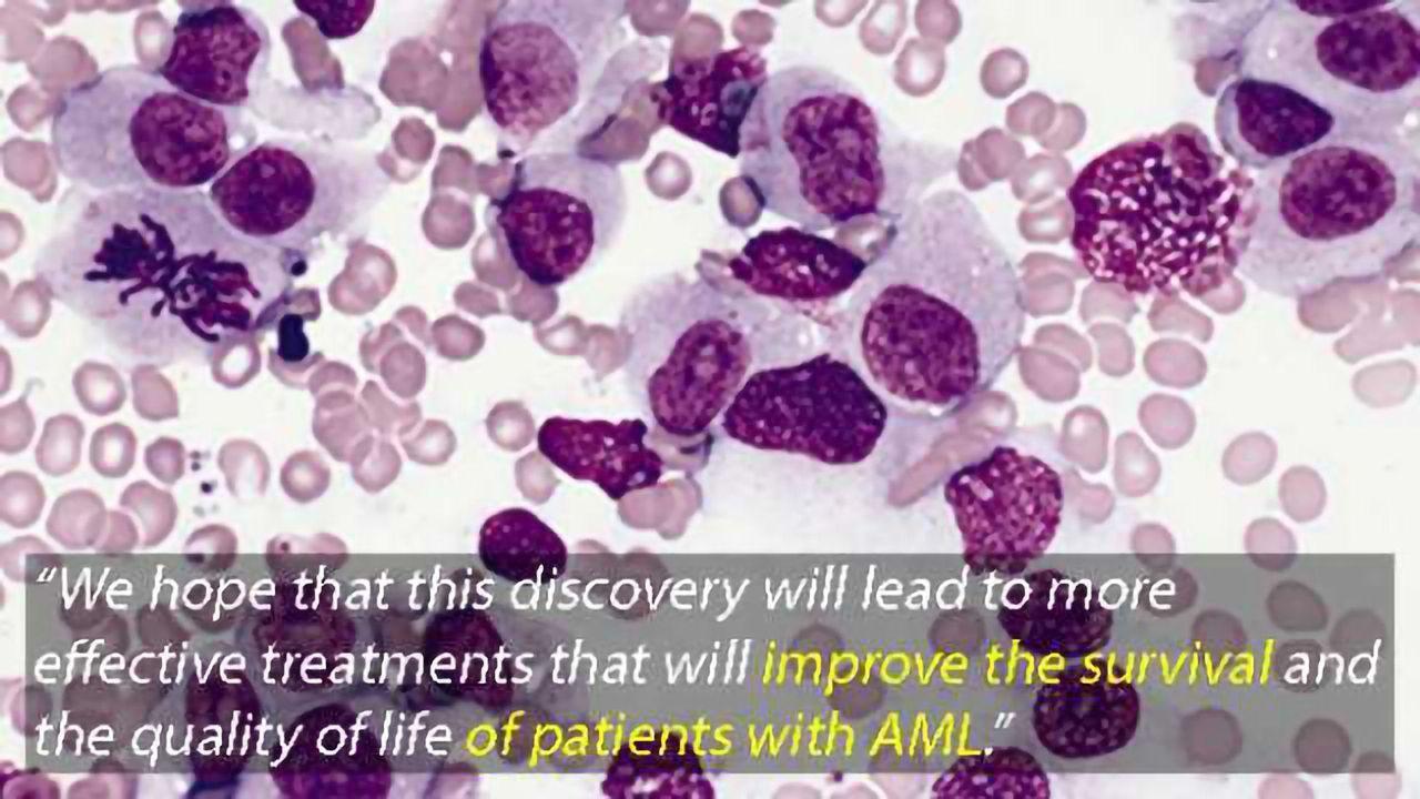 New Drug Target for Acute Myeloid Leukaemia