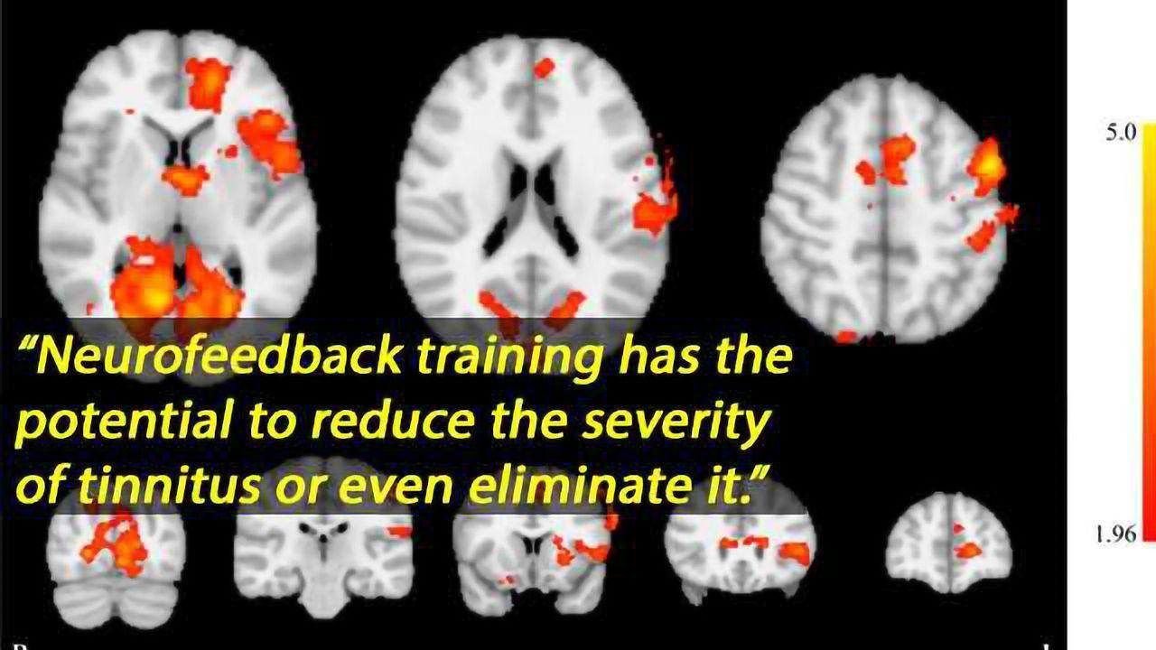 Neurofeedback Found Beneficial in Tinnitus Treatment